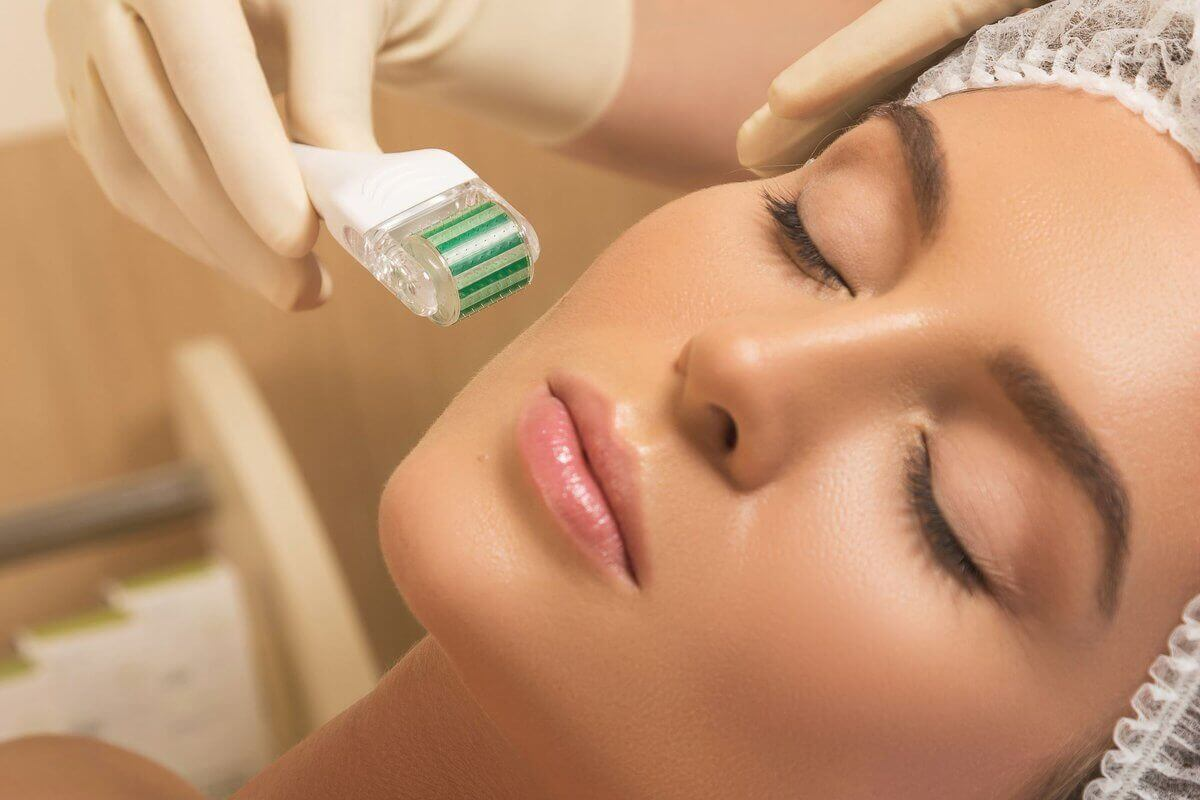 Experience These Amazing Microneedling Benefits Today